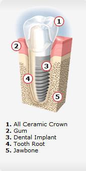 dental implants san marcos Dr. Yaron MIller in Vista CA